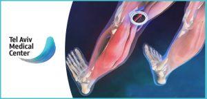 טיפול בכלי דם וורידים ברגלים