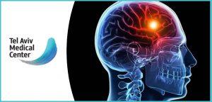 אולטרסאונד לאבחון ומניעת שבץ מוחי