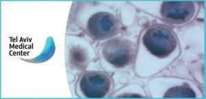 כלמידיה טרכומטיס Chlamydia Trachomatis