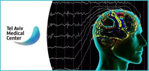 EEG בחסך שינה