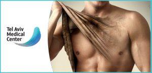 הסרת שיער לצמיתות?