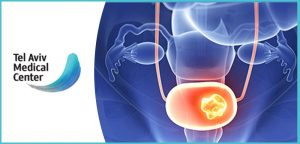 אבחון מוקדם - תסמינים לסרטן צוואר הרחם
