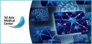 נוירולוג פרטי – מה היתרון